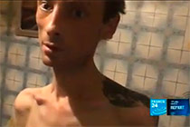 France24 on the use of Krokodil