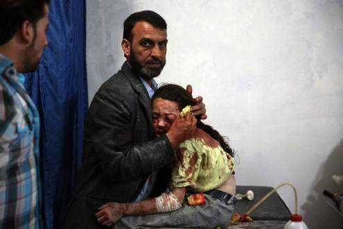 A wounded Syrian girl at a makeshift hospital, Syria